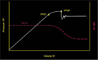 Figure 2: There should be a linear trend for pump pressure (PP) and volume of mud pumped in (VI) until PP reaches PFG1. Continued pumping past this point would result in a pressure that causes fracture propagation (PFGP). Large losses may resume.